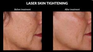 Laser Skin Tightening