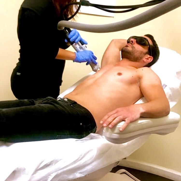 Mens+Laser+Hair+Removal