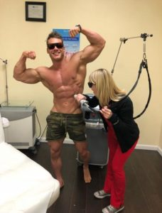 Laser Hair Removal for Bodybuilders