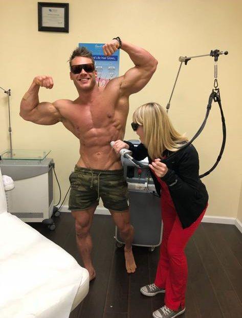 Laser Hair Removal for Bodybuilders