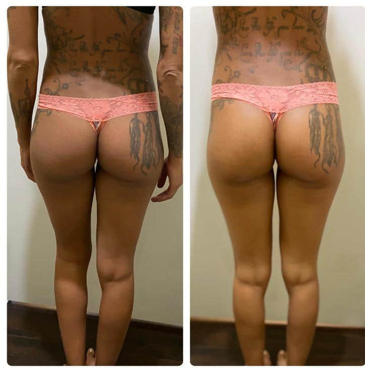Bum bleaching before and after
